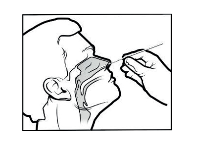 covid 19 rapid antigenic pharyngeal nose test kit